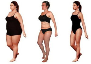 weight-loss-surgery_jpg11